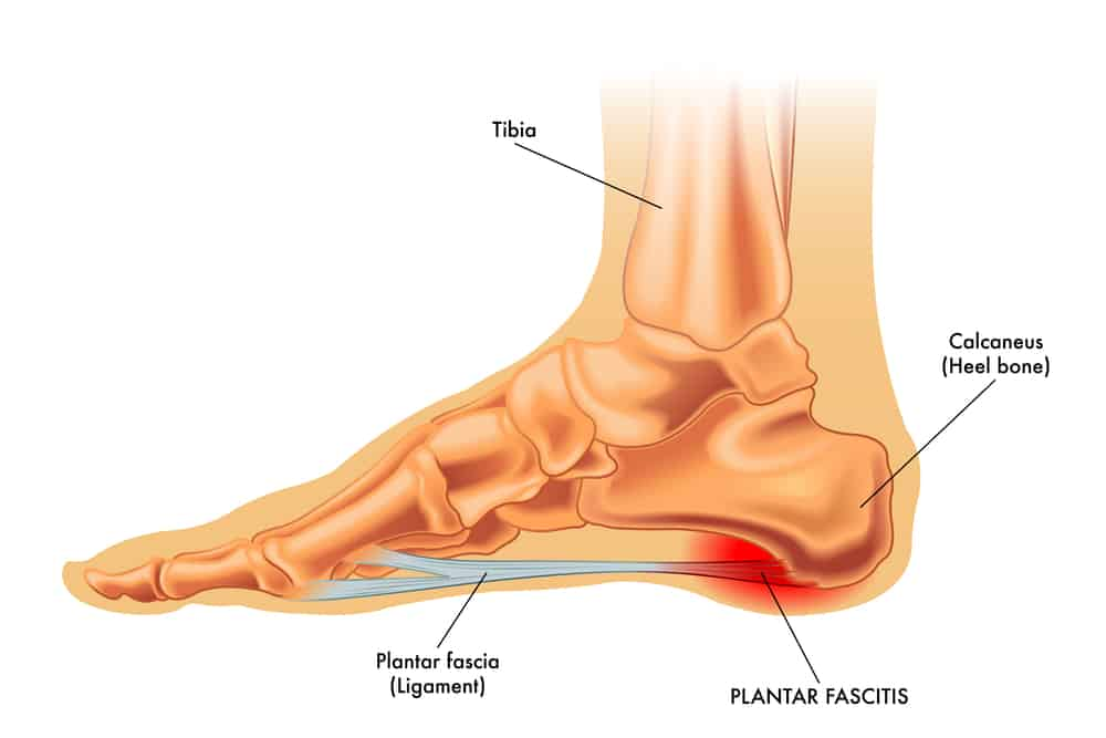 Plantar fasciitis is usually pain at the bottom and inside part of your foot.