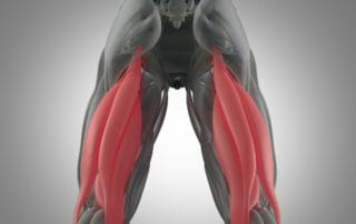 There are three hamstring muscles. The symptoms of a hamstring strain include pain and swelling