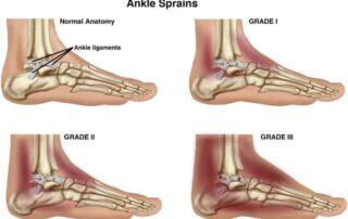 severe ankle sprain, ankle pain