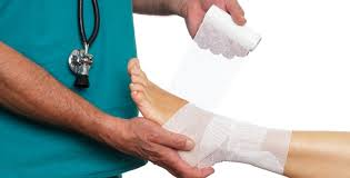 ankle sprain, medical attention for ankle sprains