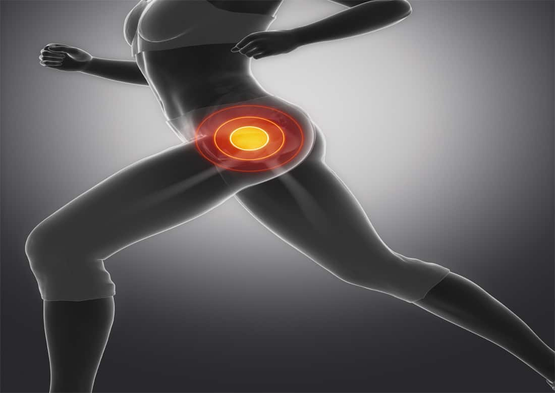 Hip physical therapy can help ease hip pain without surgery.