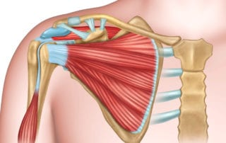 Shoulder physical therapy involves treatment of the rotator cuff