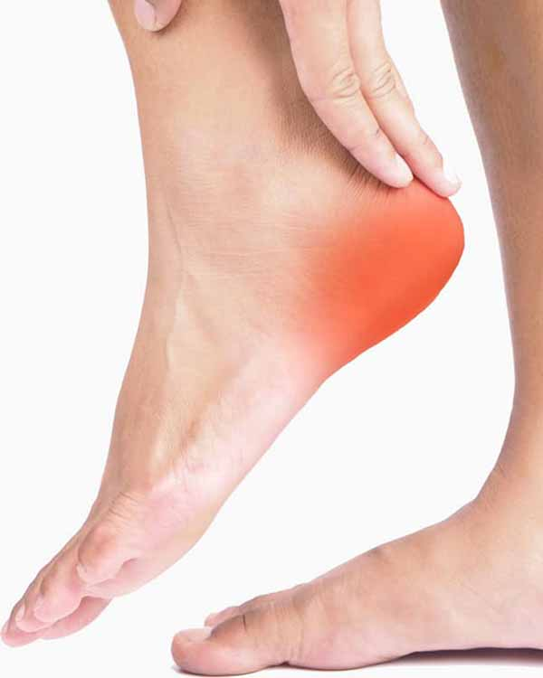Our plantar fasciitis specialists in Fort Myers, FL get to the root cause of plantar fasciitis.