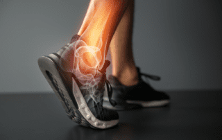 Plantar Fasciitis Treatment in Fort Myers, FL