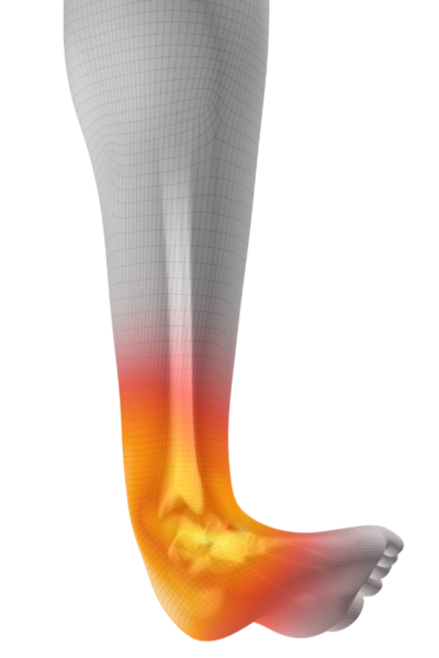 Ankle Sprain Treatment in Fort Myers, FL