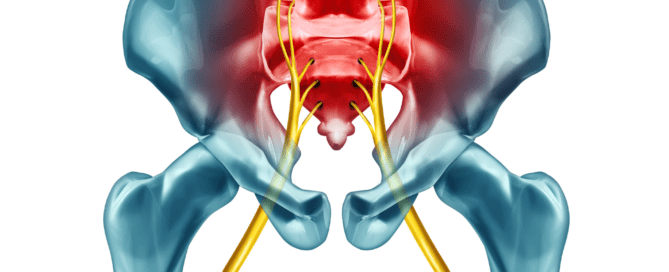 sciatica treatment fort myers