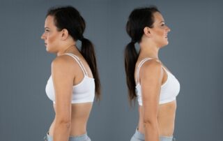 Kyphosis treatment fort myers